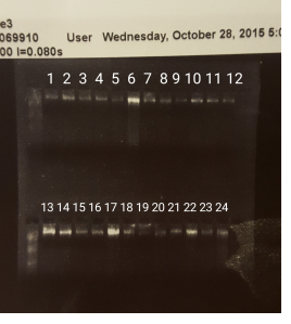 DNA extraction done 10/23/15